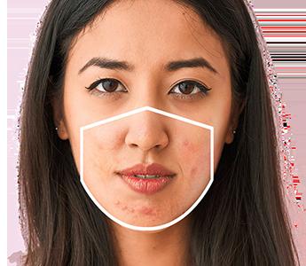 Как се отразява носенето на маска върху състоянието на кожата на лицето?