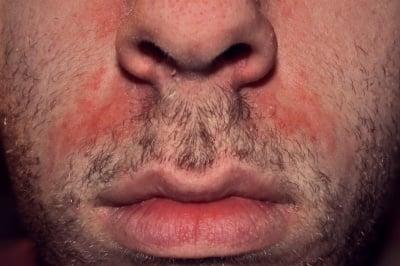 Себореен дерматит и себорея