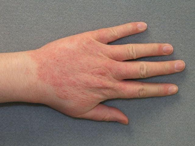 Алергичен контактен дерматит