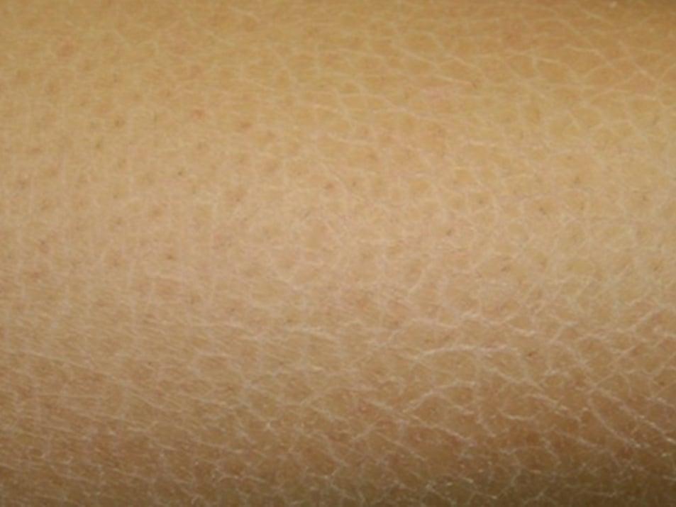 Суха кожа